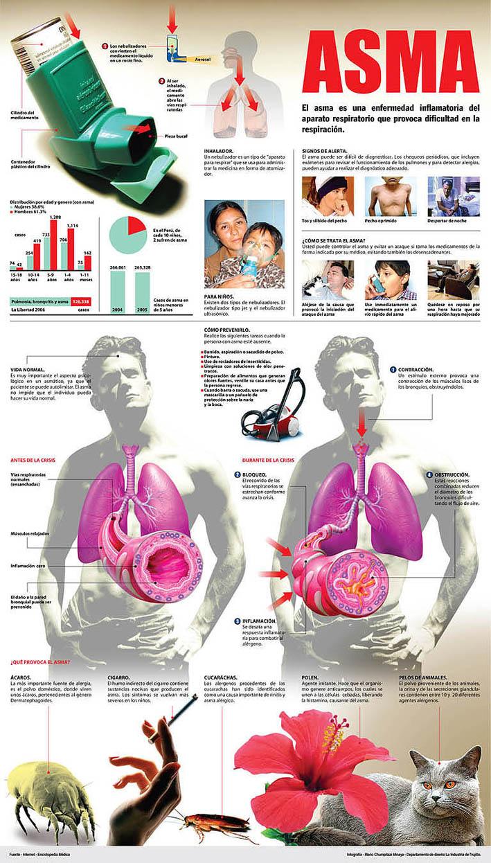 Asma #infografia #infographic #health